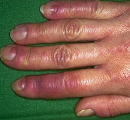 mãos com frieiras sem feridas